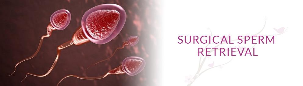 Surgical Sperm Retrieval
