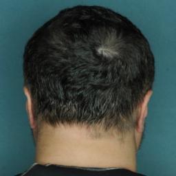 alopecia-areata-5