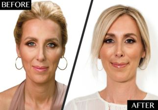 Anti-ageing treatment