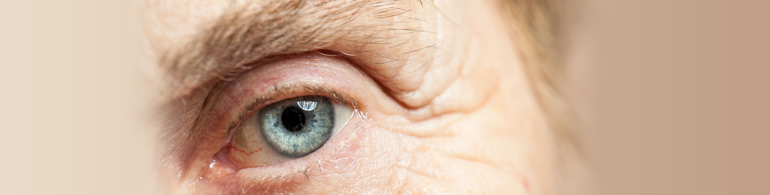 Laser and Cataract Eye Surgery