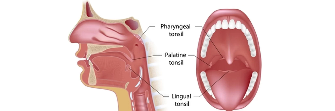 Adenoidectomy Surgery in India