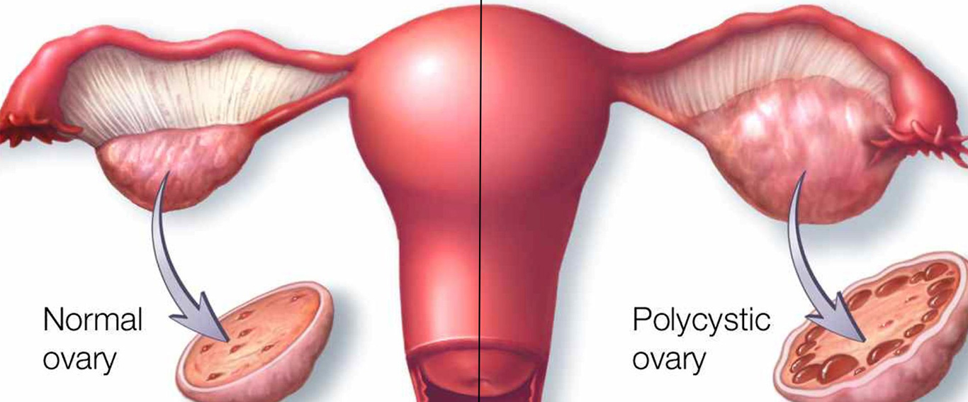 PCOS Drilling