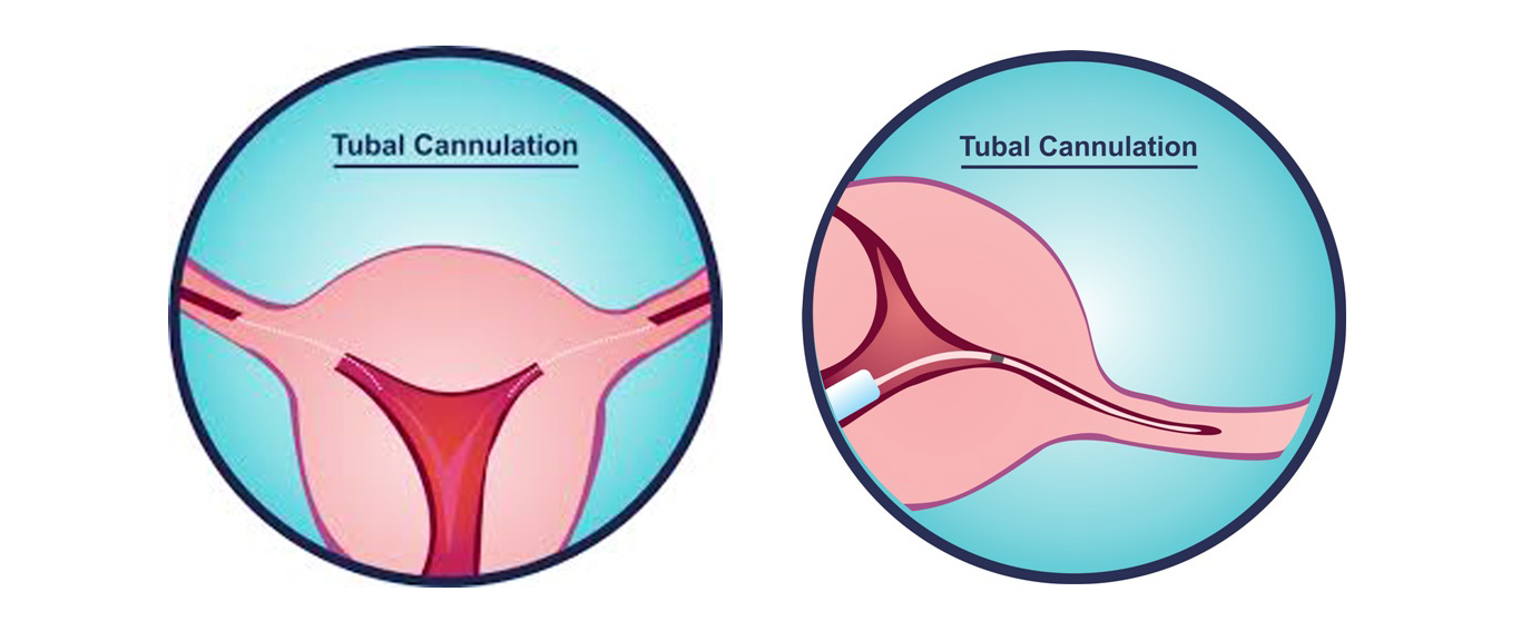 Tubal Cannulation