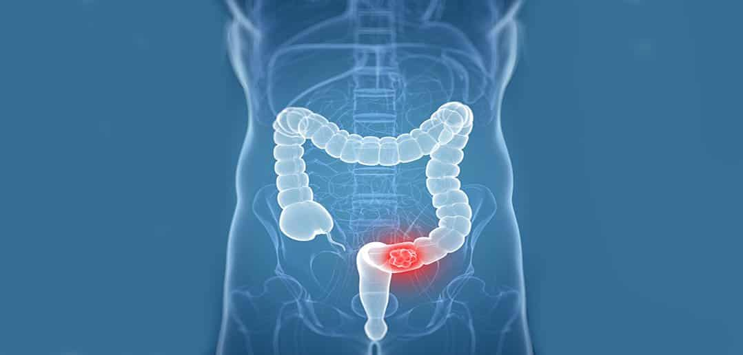 Rectal Cancer Treatment In India Rectal Cancer Treatment Hospitals